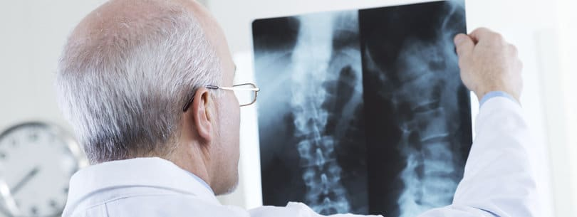 Spinal Cord Injury Attorneys in Washington DC