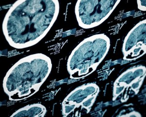 Brain Injuries Caused by Medical Malpractice