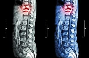 Failure to Diagnose and Misdiagnoses of a Spinal Cord Abscess
